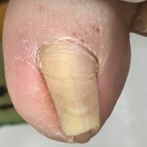 ストロー巻き爪 事例の施術前 ビフォー画像