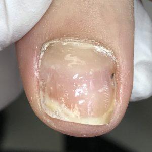 割れ爪 事例の施術後 アフター画像