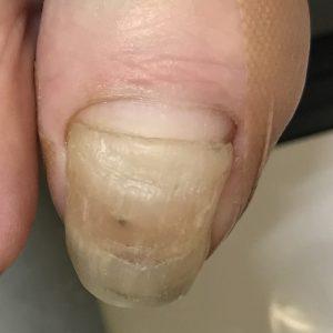 変形爪 事例の施術前 ビフォー画像