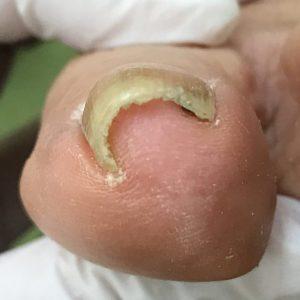 中度巻き爪 事例の施術前 ビフォー画像