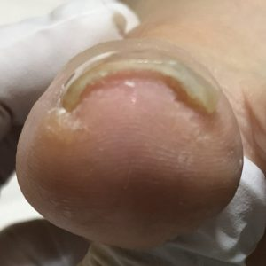 渦巻き爪 事例の施術後 アフター画像