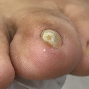 渦巻き爪 事例の施術前 ビフォー画像