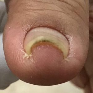 手指の巻き爪 事例の施術前 ビフォー画像