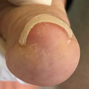 手指の巻き爪 事例の施術後 アフター画像