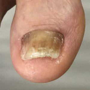 変形爪 事例の施術後 アフター画像