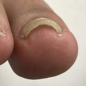 中度巻き爪 事例の施術後 アフター画像