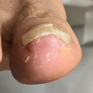 重度巻き爪 事例の施術後 アフター画像