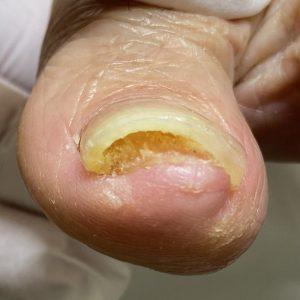 肥厚爪 事例の施術後 アフター画像