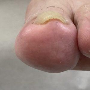 重度巻き爪 事例の施術前 ビフォー画像